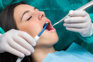 What Does Teeth Cleaning Do For You?