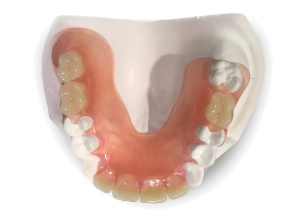 Clear Palate Dentures